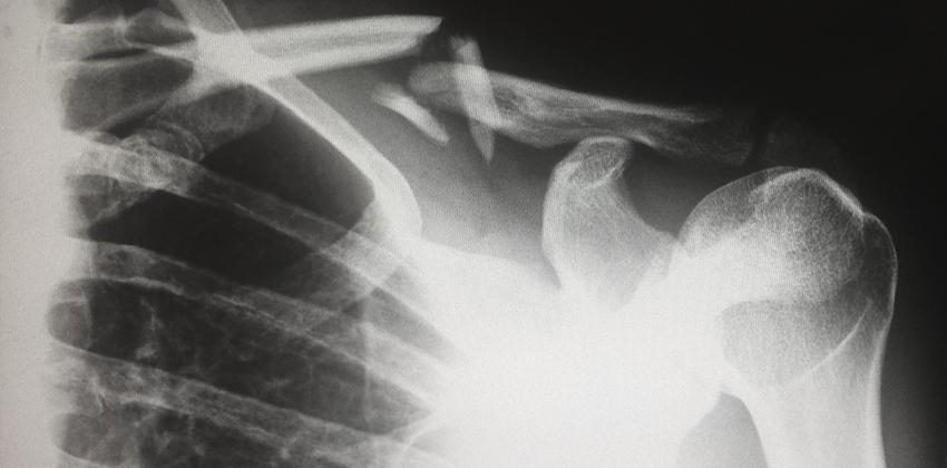 X ray of bones